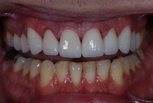 Smile Makeover : Case 1 After