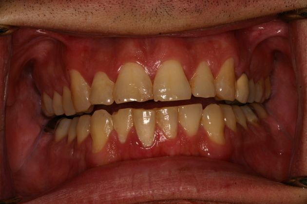 Smile Makeover : Case 1 Before