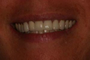 Smile Makeover : Case 2 After