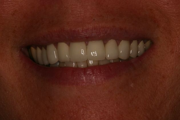 Smile Makeover : Case 2 After
