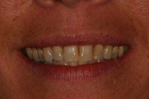 Smile Makeover : Case 2 Before