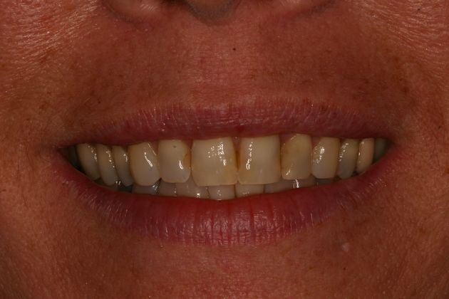 Smile Makeover : Case 2 Before