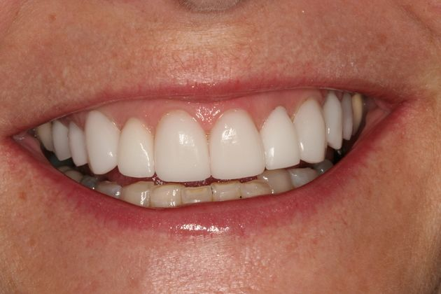 Smile Makeover : Case 3 After