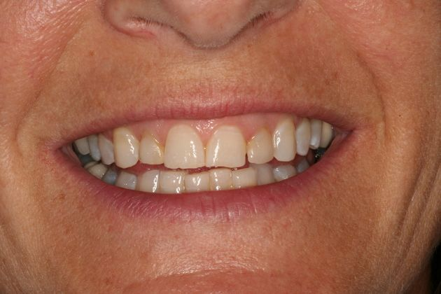 Smile Makeover : Case 3 Before