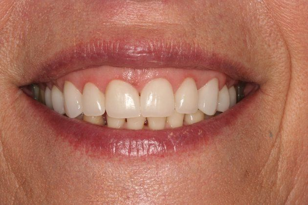 Smile Makeover : Case 5 After