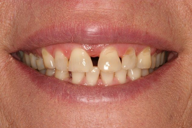 Smile Makeover : Case 5 Before