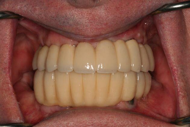 FMR Dentures After