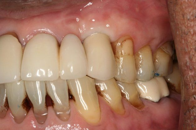 Implant Anterior Single Tooth After