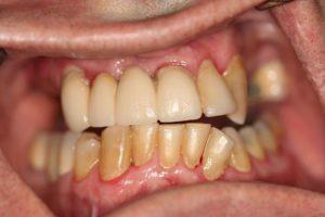 Implant FM Implant Reconstruction before