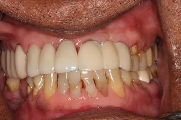 Implant Immediate Placement After