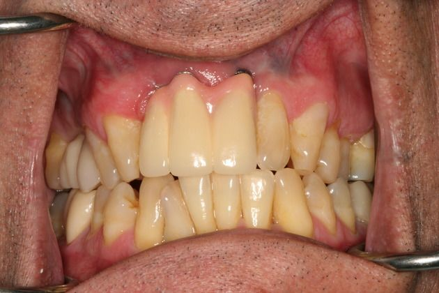 Long Tooth After