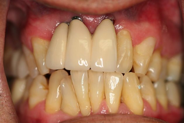 Long Tooth Before