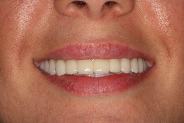 Teeth Hurt After