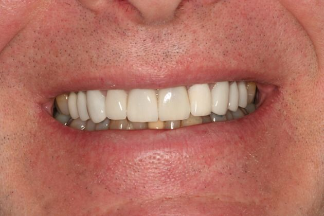 Tetracycline Makeover After