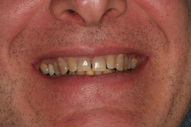 Tetracycline Makeover Before